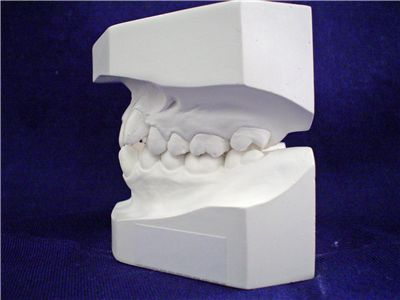 Picture Of Dentist Mold