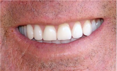 Picture Of New Dentures