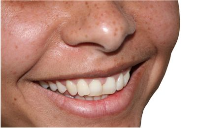 Picture Of Smile Teeth